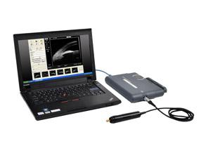 MD-320W Portable Ultrasound Biomicroscope